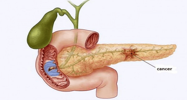 here-is-how-to-prevent-the-deadliest-of-all-types-of-cancer-pancreas-cancer-600x410